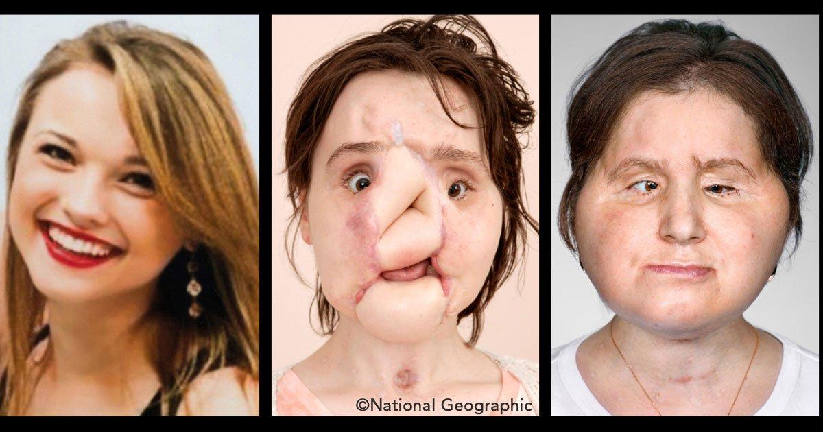 untitled 1 101.jpg?resize=300,169 - Le trasplantan rostro a una joven que trató de quitarse la vida, un nuevo milagro médico