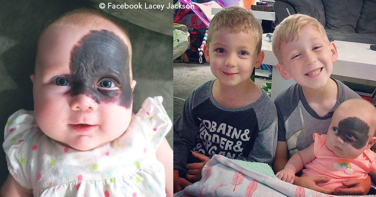 untitled 1 29.jpg?resize=1200,630 - Uma linda menina nasceu com uma mancha no rosto que parece uma máscara, mas sua família a considera fabulosa