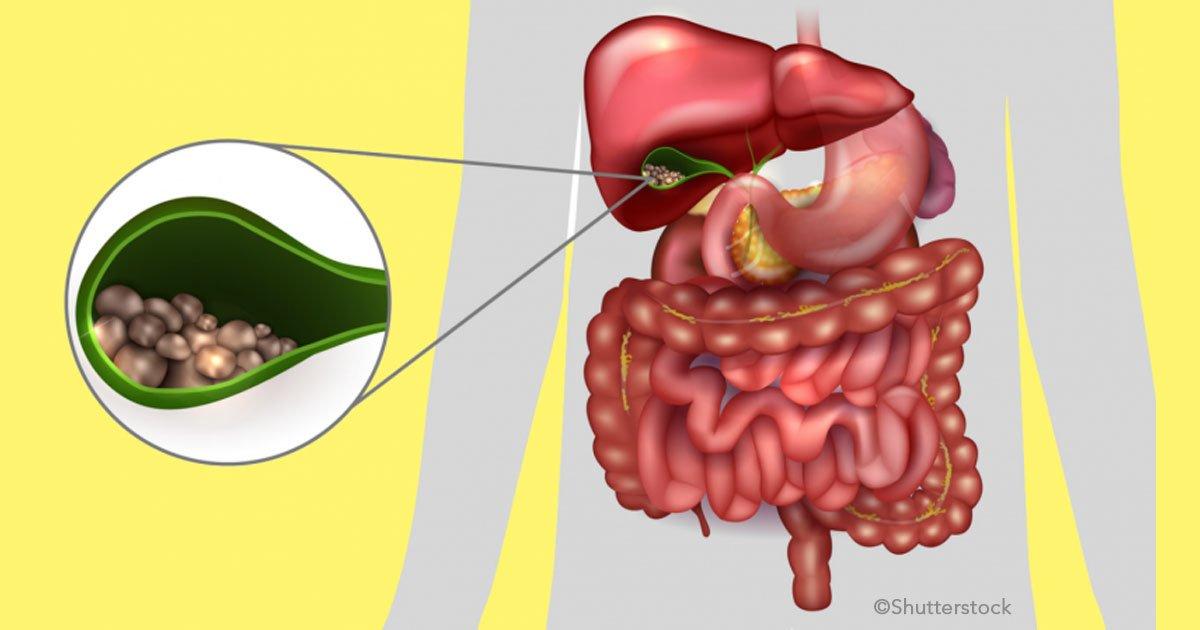 untitled 1 46.jpg?resize=412,232 - Cálculos en la vesícula: cómo se forman, síntomas y tratamiento