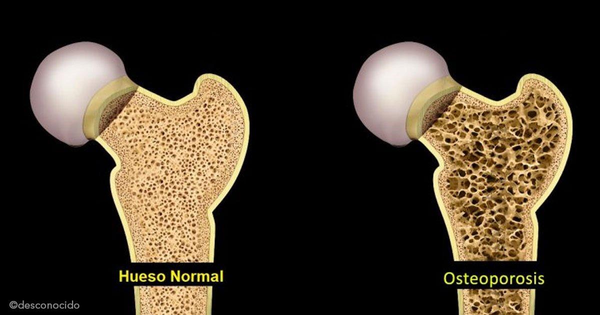 untitled 1 49.jpg?resize=412,232 - Osteoporosis: Cómo prevenirla y consejos para fortalecer los huesos