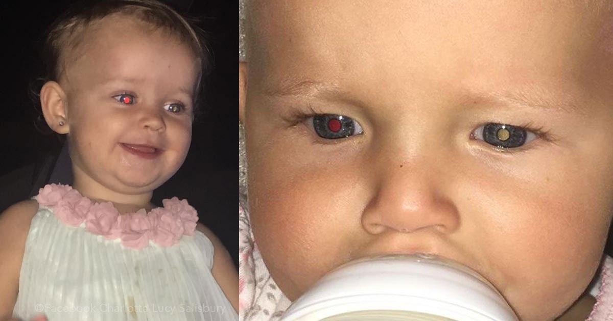 untitled 1 67.jpg?resize=300,169 - Compartió una foto de su bebé cuando tuvo un extraño cáncer de ojo y salvó la vida de otro pequeño