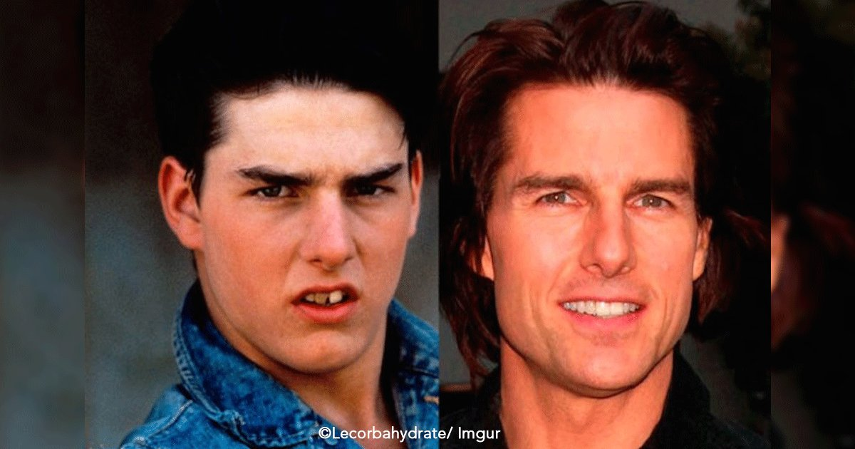 untitled 1 7.png?resize=412,232 - Estas 9 celebridades de Hollywood antes de ser tan famosos tenían una dentadura terrible