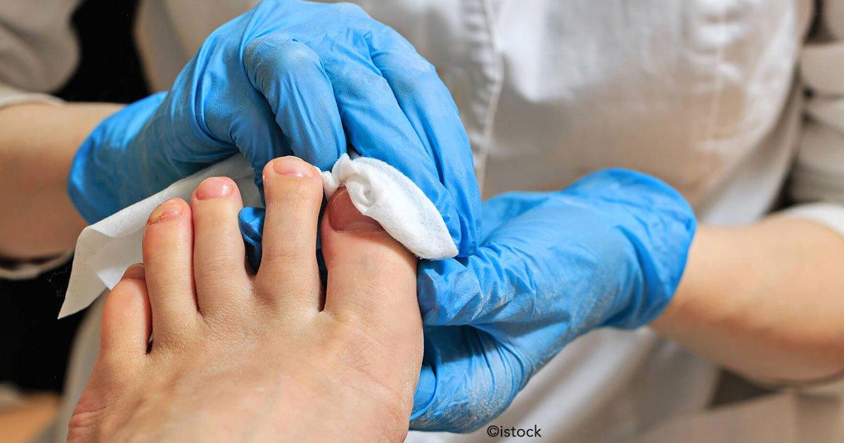 untitled 1 86.jpg?resize=412,232 - Causas y tratamientos para la micosis en las uñas, además de posibles riesgos que debes evitar