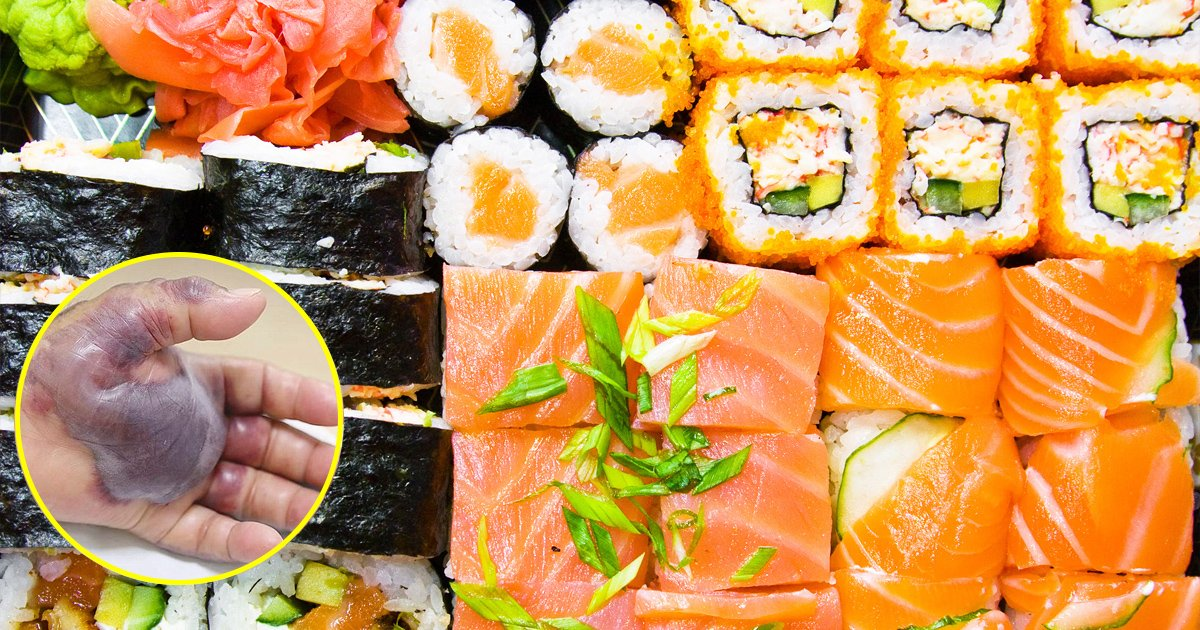 vgaaa.jpg?resize=412,232 - Fã de sushi tem mão amputada após contrair infecção bacteriana por comer peixe cru