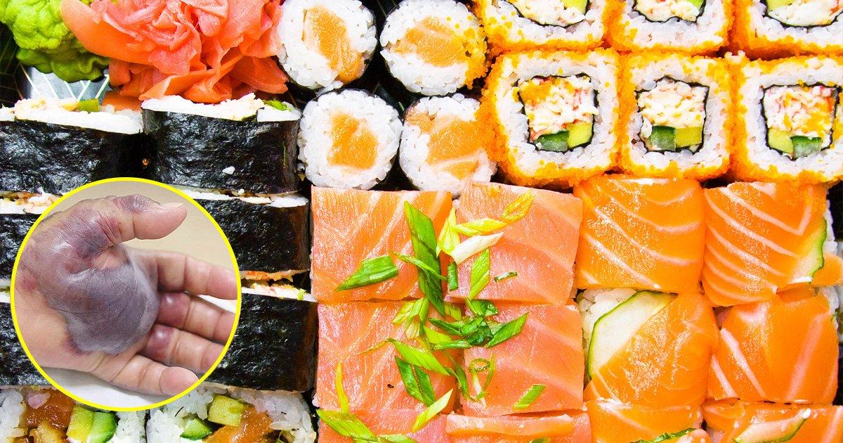 vgaaa.jpg?resize=648,365 - Fã de sushi tem mão amputada após contrair infecção bacteriana por comer peixe cru