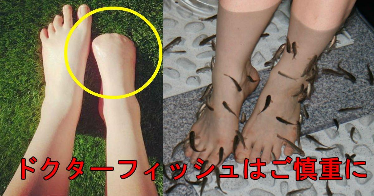 2 121.jpg?resize=648,365 - 角質除去しようと「ドクターフィッシュ」を使用した結果、「右足指」を全部失った女性