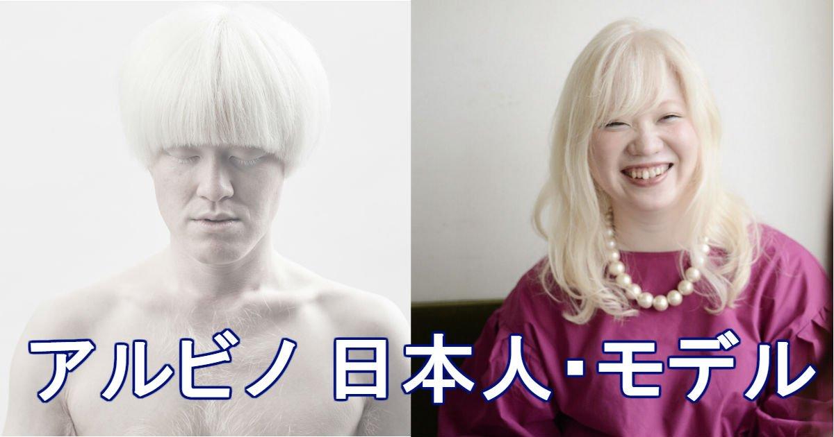 2 43.jpg?resize=300,169 - アルビノの日本人&モデルまとめ!※画像あり
