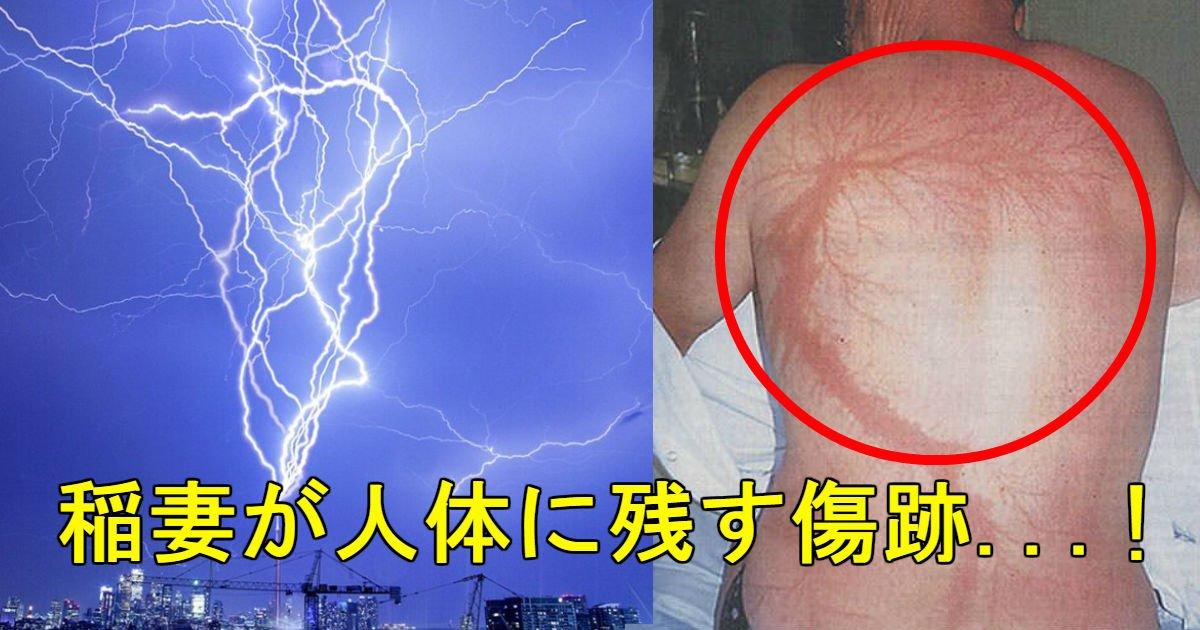 4 101.jpg?resize=1200,630 - 【落雷の傷跡】体に刻まれた稲妻のような図形「リヒテンベルク図形」(※閲覧注意)