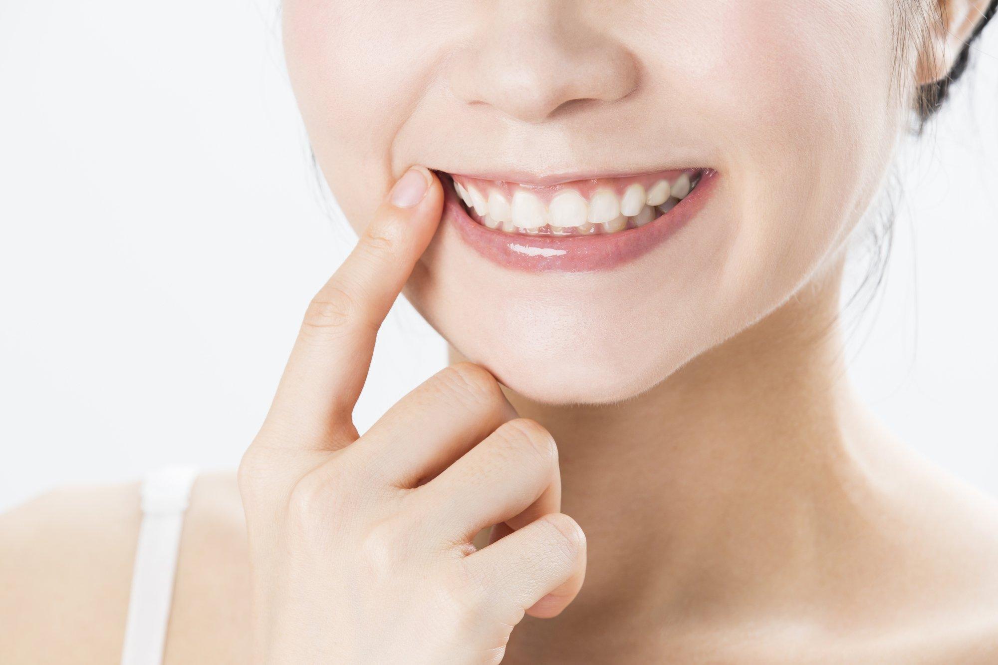 「歯茎 腫れる 鎮痛剤」の画像検索結果
