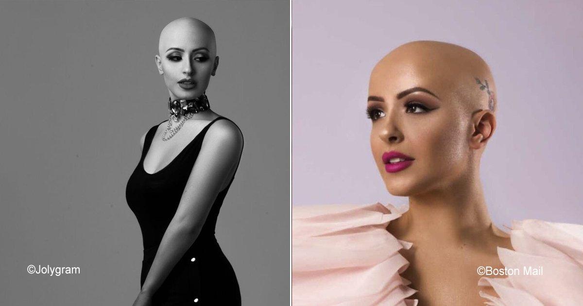 alopecia.jpg?resize=300,169 - Mujeres calvas crean #AlopeciaIsFashion, están convencidas que sin cabello se puede estar a la moda