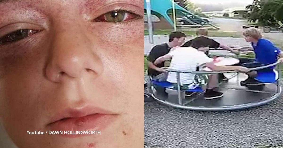 """cover22 31.png?resize=300,169 - El reto viral de YouTube que le causó heridas """"vistas en los pilotos de combate"""" a un niño"""