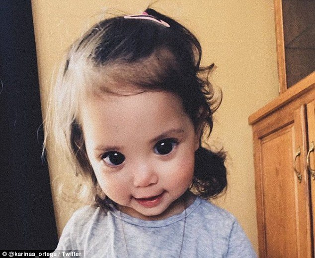 Mehlani Martinez, nearly two, has Axenfeld-Gieger syndrome, a rare genetic disorder that causes under-developed or missing irises. Her giant eyes are nearly all pupil, making her look like a Disney princess