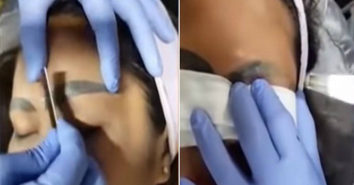 eyebrow tattoo.jpg?resize=636,358 - Woman With 'Slug' Eyebrows Gets The Botched Tattoos Removed
