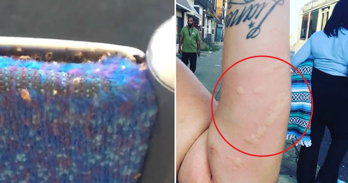 gsgsgs.jpg?resize=1200,630 - Horrified Bus Passenger Discovers 'Thousands Of Bedbugs' Swarming Her Seat Leaving Her With 'Burning Arm'