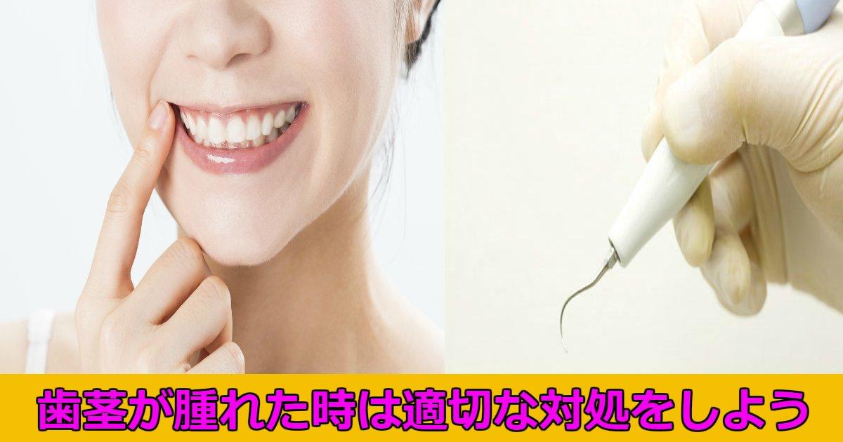 haguki.png?resize=412,232 - 歯茎が腫れてしまった時の対処法は?たまに腫れることあるよね