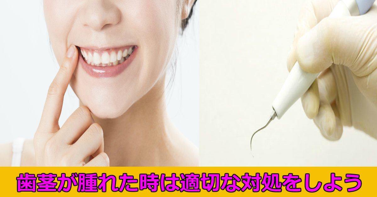 haguki.png?resize=636,358 - 歯茎が腫れてしまった時の対処法は?たまに腫れることあるよね