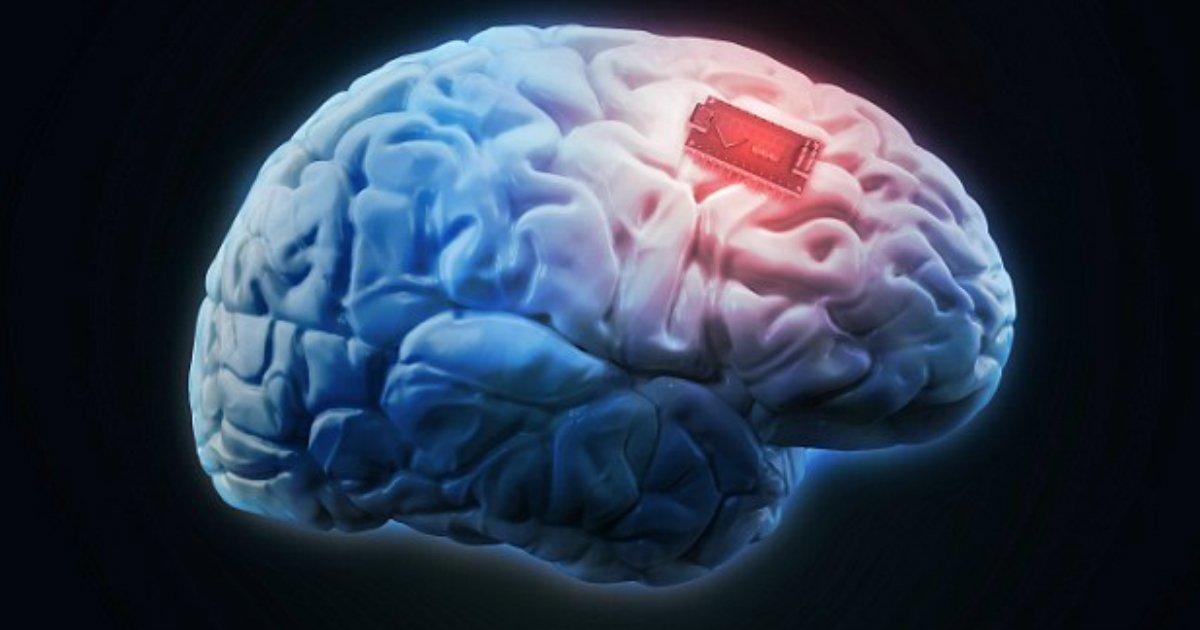 implant.jpg?resize=300,169 - Grande découverte ! Un implant cérébral pourrait arrêter les crises d'épilepsie en libérant un produit chimique naturel