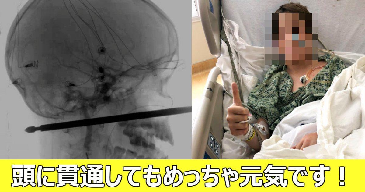 kantu.png?resize=636,358 - 木から転落し金串が少年の顔を貫通したものの奇跡的に助かった!