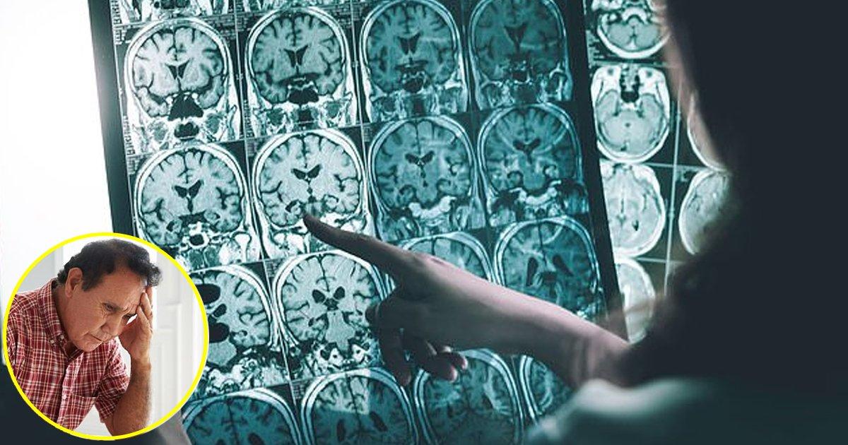 kkk.jpg?resize=1200,630 - Les scientifiques ont découvert un nouveau moyen de mettre fin aux effets négatifs de la maladie d'Alzheimer