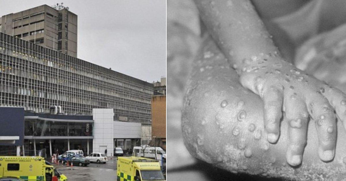monkeypox2.png?resize=412,232 - Dois casos de vírus mortal de varíola são descobertos no Reino Unido em turistas nigerianos