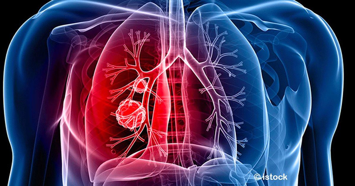sin titulo 1 21.png?resize=300,169 - Síntomas silenciosos del cáncer de pulmón, conocerlos podría salvar a muchas personas