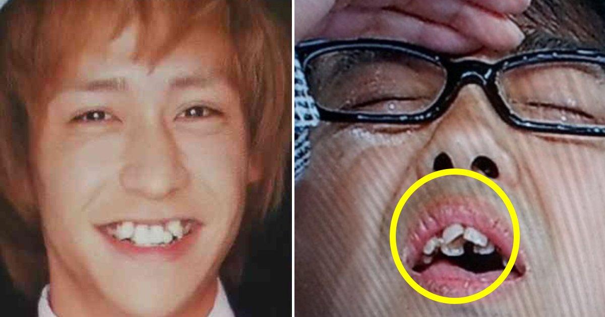 teeth 2.jpg?resize=1200,630 - 【歯並び・八重歯】芸能人の歯科矯正