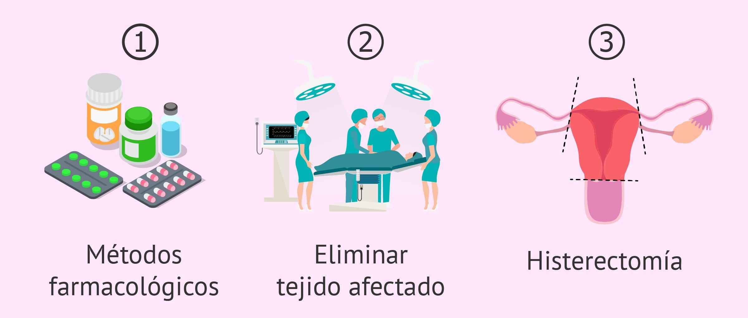 histerectomia total tratamiento hormonal