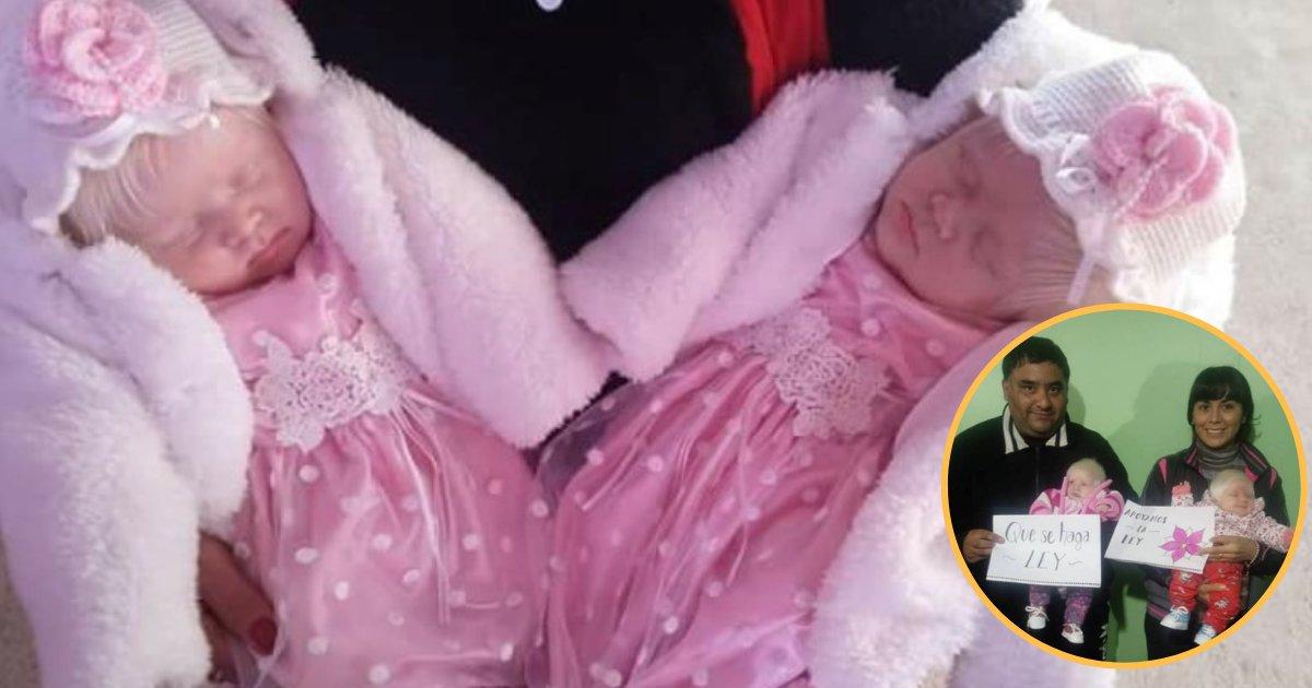 twins5.png?resize=648,365 - La naissance de jumelles albinos créer la sensation en Argentine.