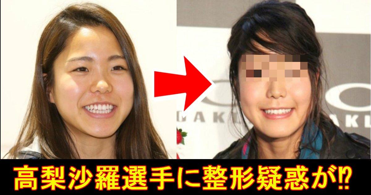 unnamed file 1.jpg?resize=300,169 - スキージャンプ女子の高梨沙羅選手が顔が変わりすぎ!?