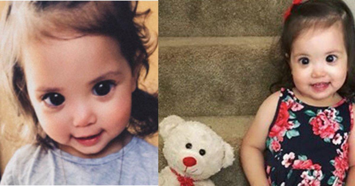 """untitled design 1 13.png?resize=636,358 - Mãe revela que """"os olhos grandes e fascinantes"""" da sua filha de 2 anos de idade são na verdade um distúrbio visual raro"""