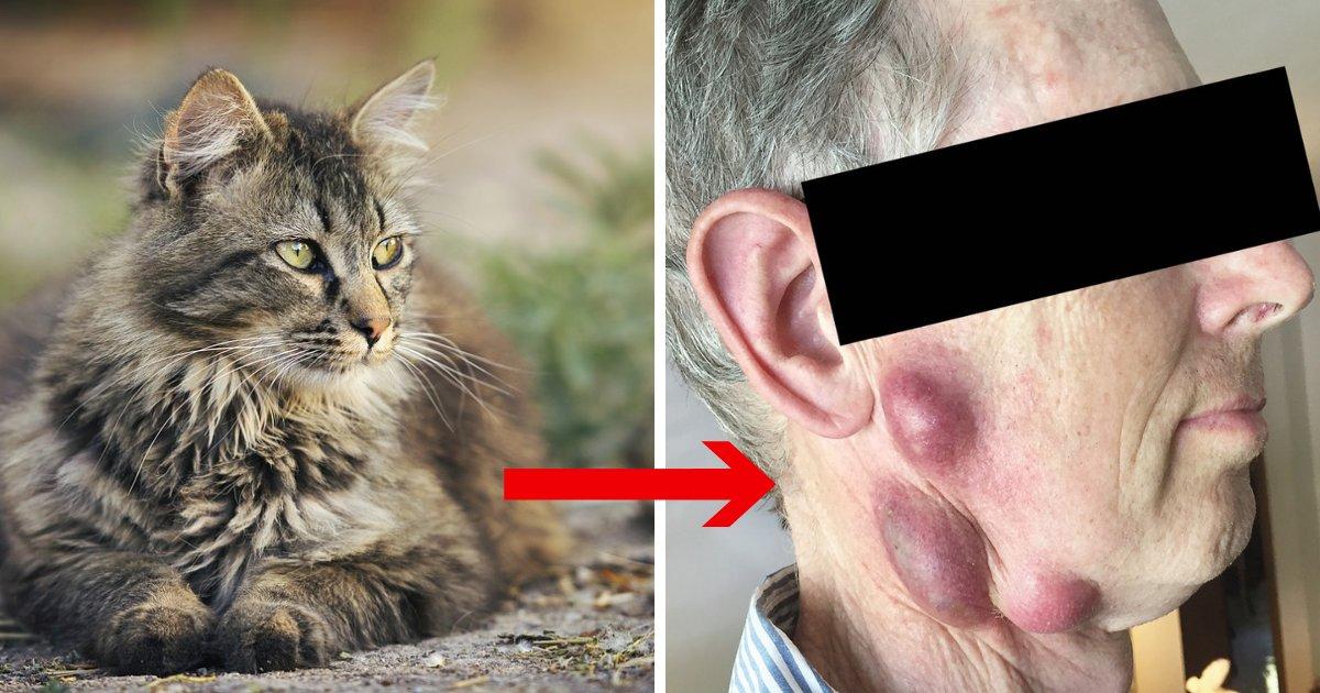 untitled design 11 2.png?resize=412,232 - Homem pega doença rara de gato e adverte outros sobre os perigos