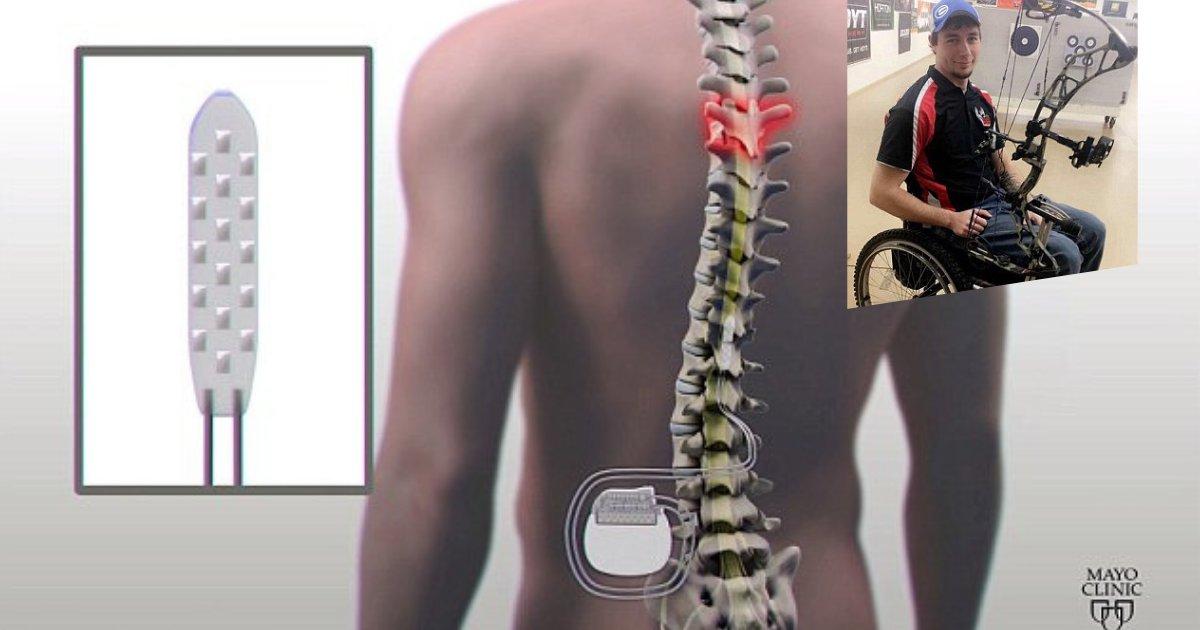 untitled design 59.png?resize=300,169 - Implante de columna vertebral ayuda a tres personas paralíticas a caminar de nuevo respondiendo a sus pensamientos