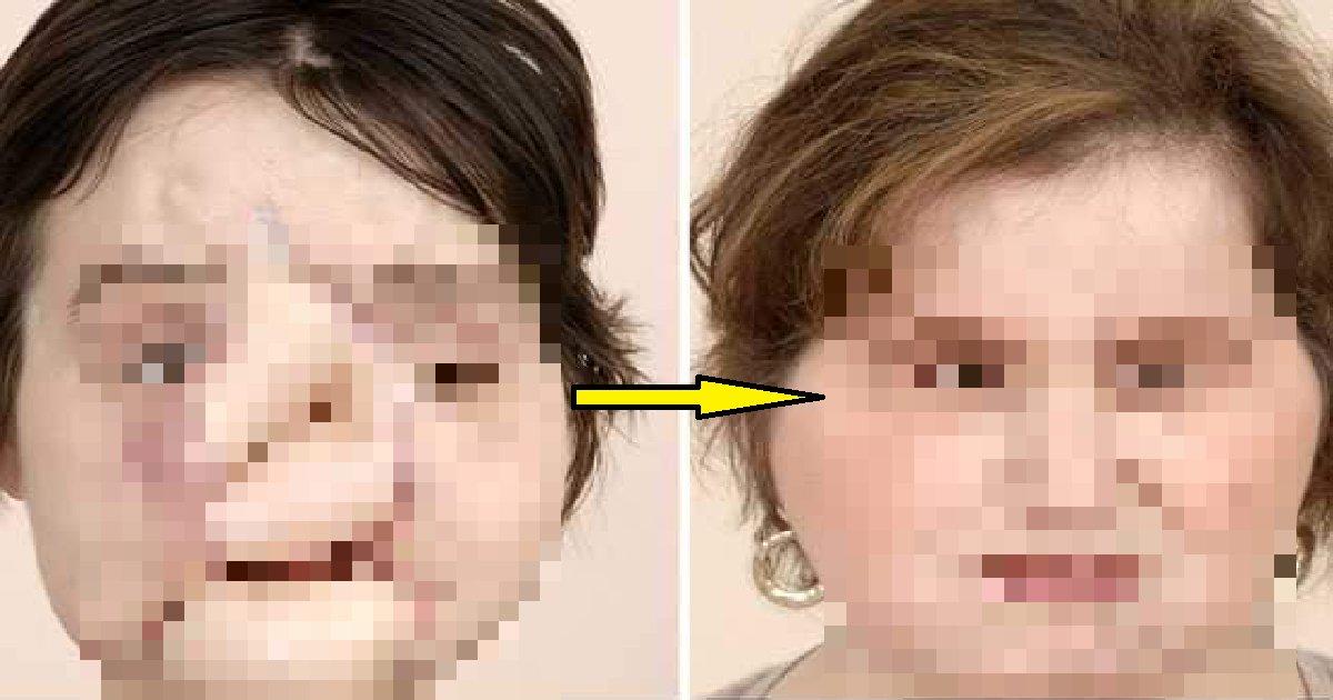 12.png?resize=1200,630 - 자살 시도 실패 후 얼굴 이식 수술을 받고 새로운 삶을 살고 있는 여성 (영상)