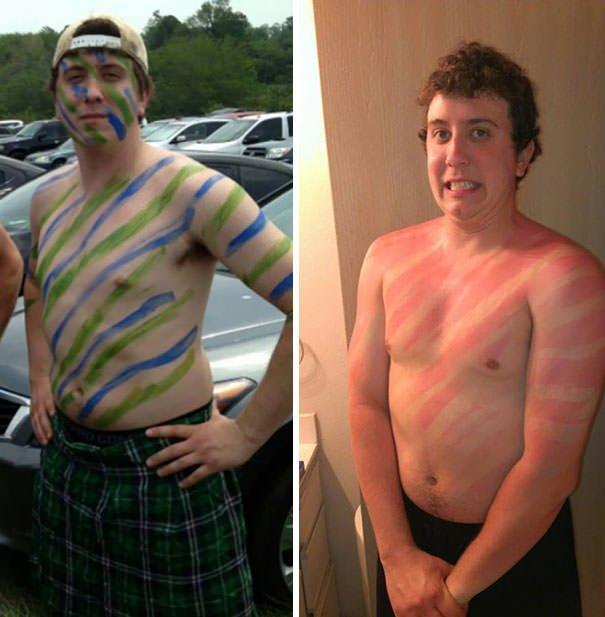 Warrior Forgot His Sunscreen