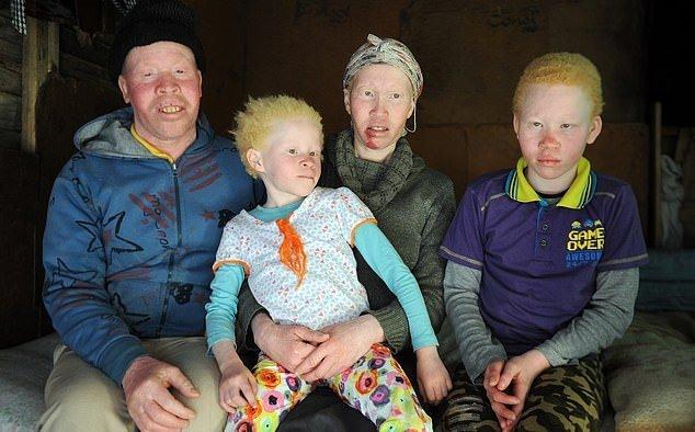 albinism-1