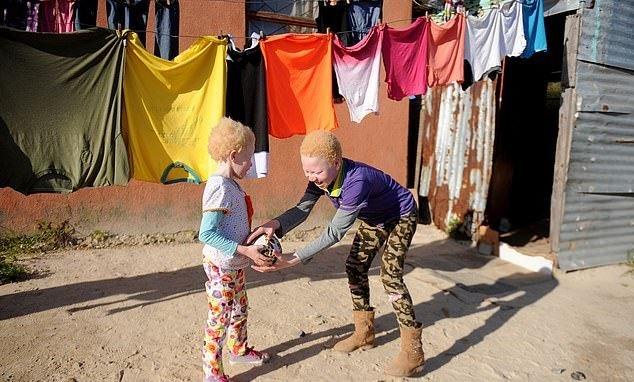 albinism-2