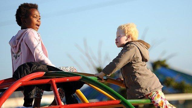albinism-3