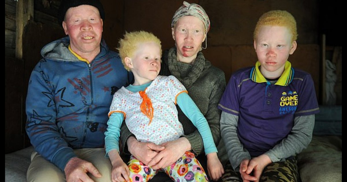 d5 1.png?resize=1200,630 - Family Suffering from Albinism Reveals How Difficult it is to Live with the Condition and Discrimination That Comes Along