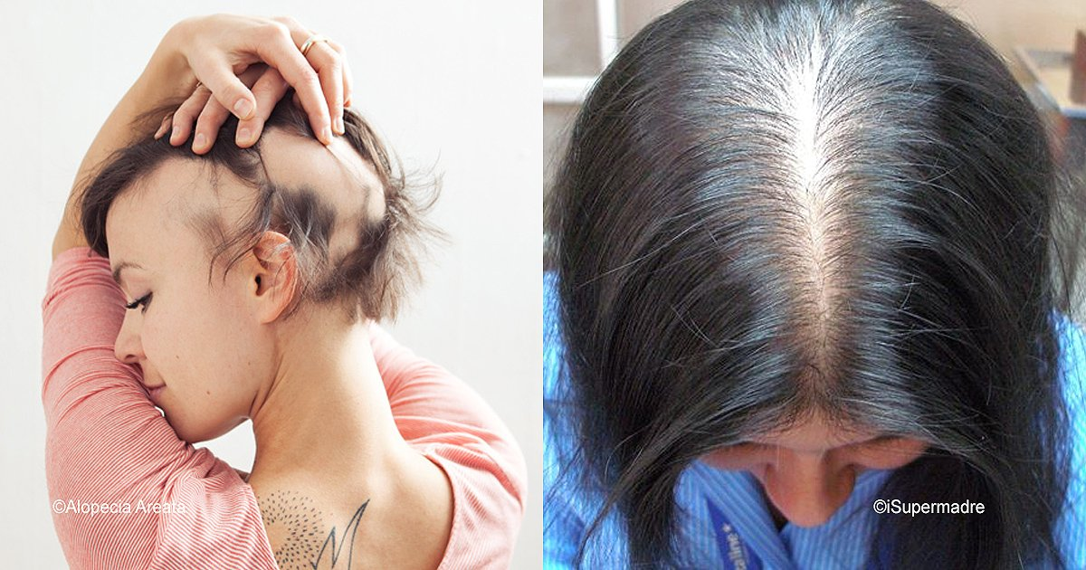diff 3.jpg?resize=300,169 - Todo sobre la alopecia femenina y sus tratamientos
