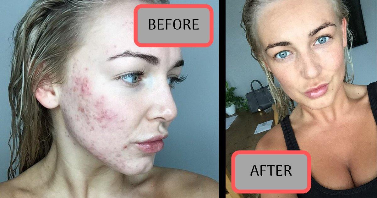 divya2 13.png?resize=412,232 - Une esthéticienne souffrant d'un grave problème d'acné depuis des années a essayé ce médicament pour s'en débarrasser, puis c'est arrivé