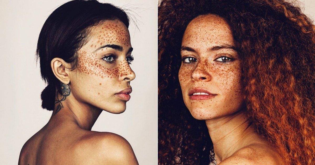 freckles.jpg?resize=412,232 - Un photographe capture la beauté de personnes couvertes de taches de rousseur, et les photos sont à couper le souffle