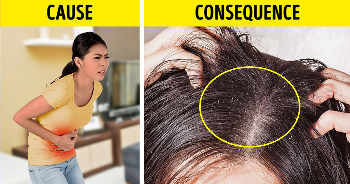 hahaha.jpg?resize=1200,630 - 5 Things Your Hair Is Desperately Trying To Tell About Your Health