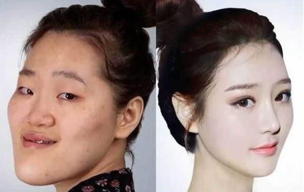 「韓国 整形」の画像検索結果