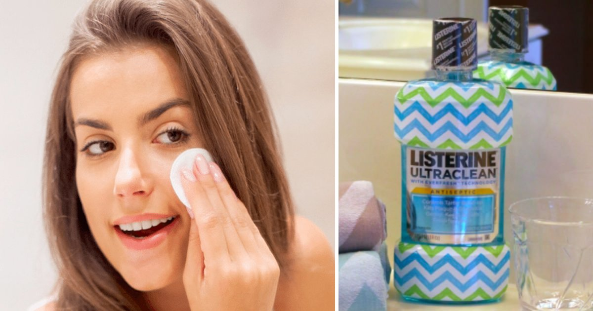 nnnks.jpg?resize=412,232 - 10 Amazing Uses Of Listerine That Every One Should Know