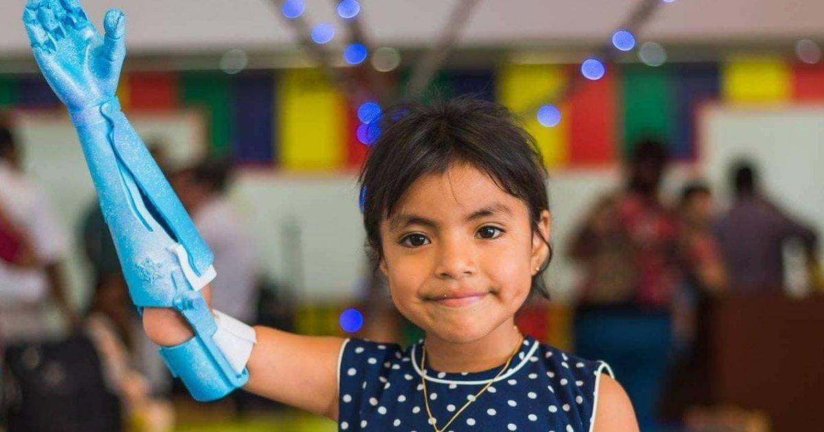 rpro.png?resize=636,358 - Casal transforma plástico encontrado no oceano em próteses para crianças carentes