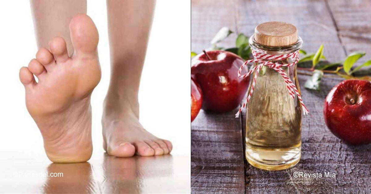 sin titulo 1 1.jpg?resize=1200,630 - Remojando tus pies en vinagre de sidra de manzana puedes eliminar toxinas y sanar tu cuerpo