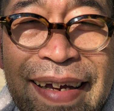 槇原敬之 歯에 대한 이미지 검색결과