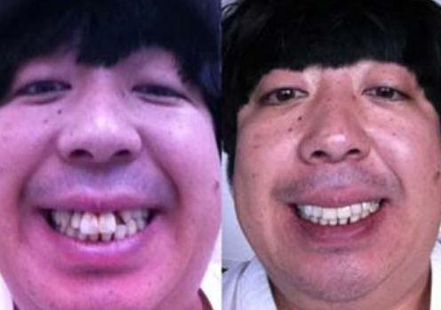 日村勇紀 歯에 대한 이미지 검색결과