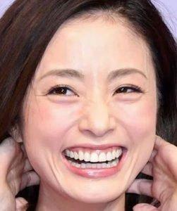 上戸彩 歯에 대한 이미지 검색결과