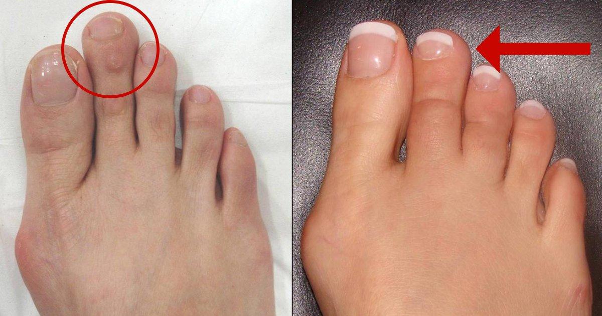 toe5.png?resize=648,365 - El acortamiento del dedo del pie es en realidad más común de lo que piensas